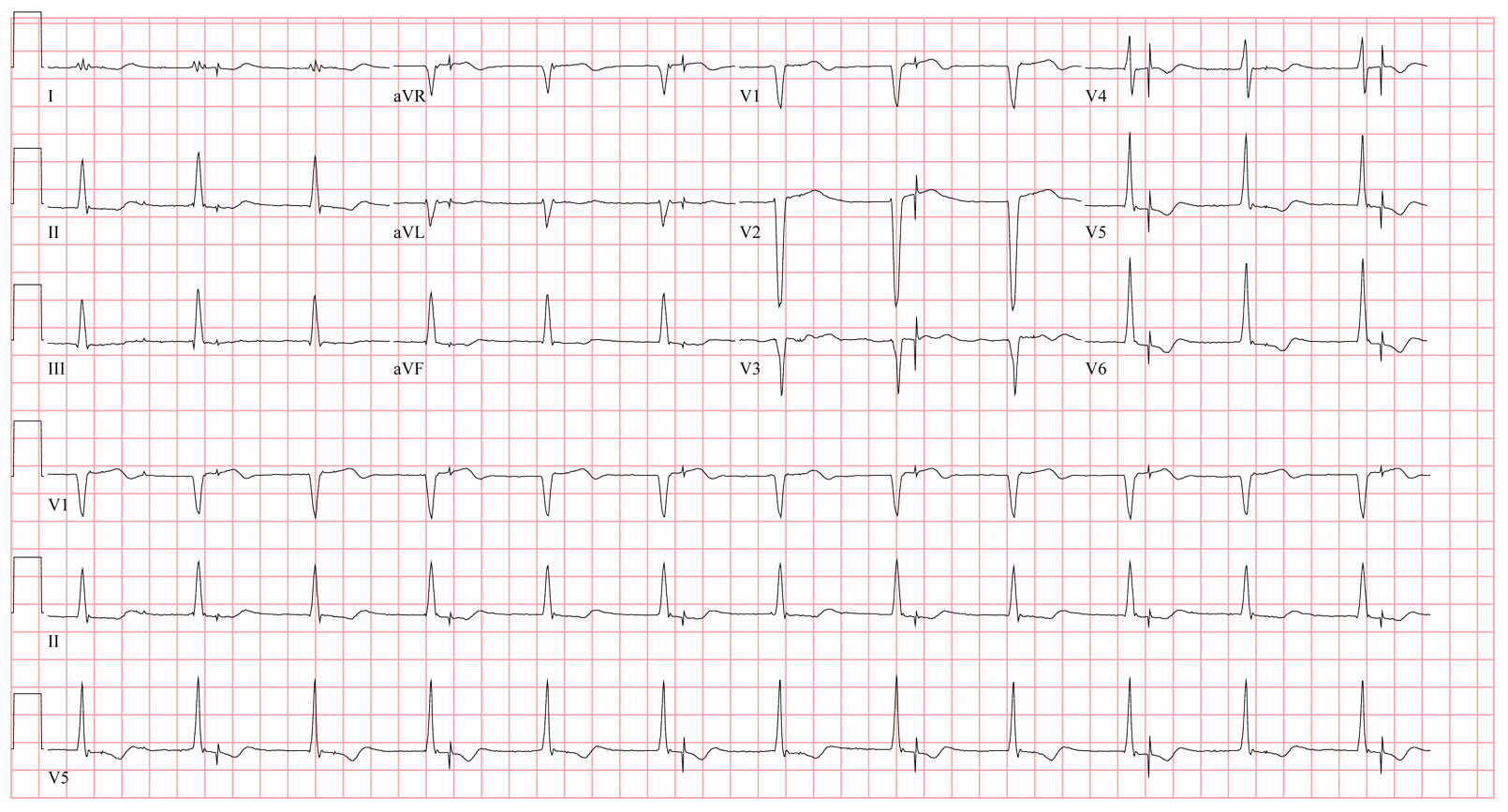 Pacemaker - Single Chamber -Ventricular