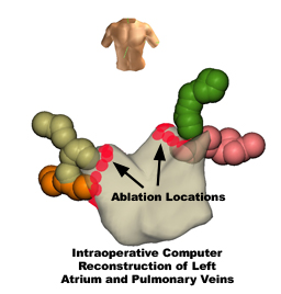 Computer Reconstruction of the Left Atrium